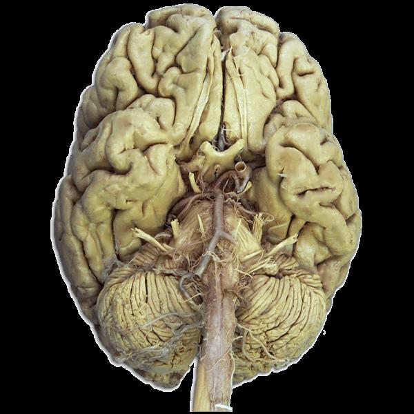 nervos cranianos em cadaver